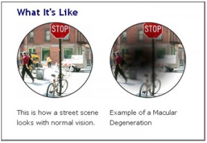 AMD-macular-degeneration-example